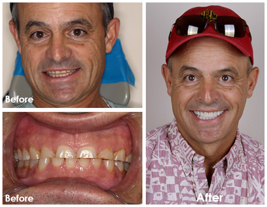 Veneers Los Algodones dentist