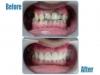 Zirconia bridge in front teeth