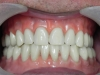 Implant Supported Dentures with Cancun Dentist