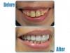 Zirconia Crowns used in cosmetic dental work