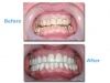 Affordable Cosmetic dentistry from Mexico dental