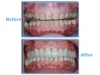 Mexico dental case: total mouth rehabilitation with zirconia crowns