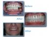 find prosthodontist in Algodones for full mouth rehabilitation