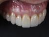 Cosmetic dentist for high quality veneers in Los Algodones, Mexico
