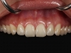 Dental Implants to fix smile on front teeth Los Algodones, Mexico