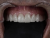 Thin Veneers, Prepless Veneers Los Algodones Dentist in Mexico