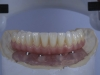 Implant supported Fixed Zirconia denture Mexico