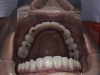 Full Mouth Dental Implants Picture Yuma Bordoer