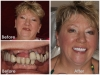 Full Mouth Restoration: Los Algodones, Mexico Before and After