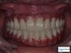 Full upper and lower dental implants in Tijuana