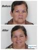 Implant Supported Dentures - Overdentures in Tijuana