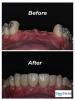 Cosmetic dentistry using dental implants