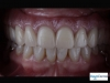 Fixed Bridge Supported by Dental Implants