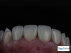 CAD/CAM All Porcelain Crowns in Tijuana