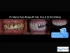 Full mouth restoration sample work in Tijuana, Mexico