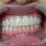 Get white teeth like Joe Biden