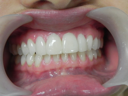 Lumineers after the installation. Our Cancun dentist installed four Lumineers on the upper front to address the gap.