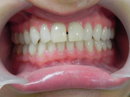 Lumineers before the installation. In this case, the client wanted to remove the gap on the front teeth.
