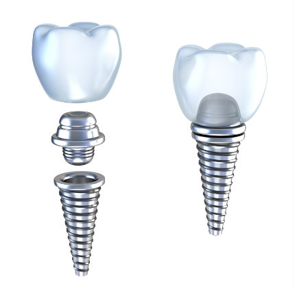Cheap dental abutment and crown in Mexico