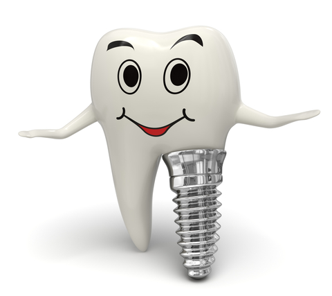 Dental implants help preserve your dental bone and teeth.