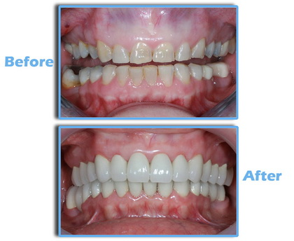 Full Smile Makeover Zirconia Crown