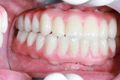 Hybrid Prosthesis supported by dental implants, Osseointegrated jawbone and tooth implant