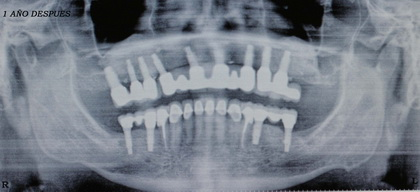 Perfectly Osseointegrated Implants
