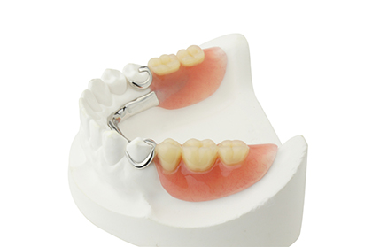 Partial dentures are the most affordable option to replace lost teeth. Partials can replace missing sections of the mouth. In the picture above, a partial replaces molars in the lower jaw.