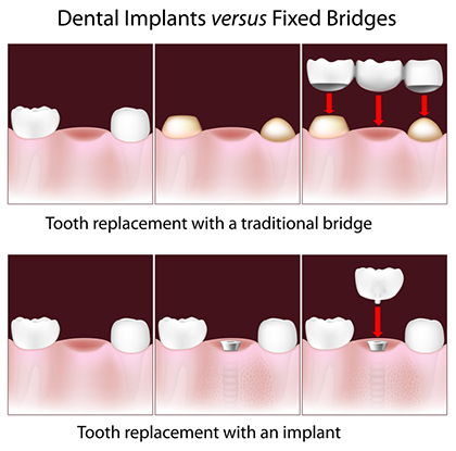 Tooth Loss Replacement in Mexico: Tooth Implant vs Bridge