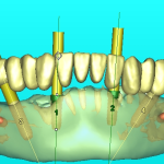 High Tech Oral Surgery – What the Dental Tourist Needs to Know