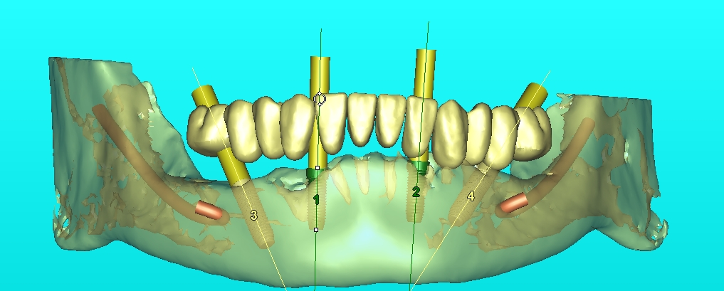 Advanced 3D CAD CAM software allows for higher success rate in oral implant surgery