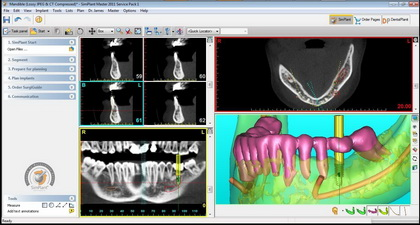 Oral Implant Surgery in Mexico using 3D CT Scan and CAD CAM Tech