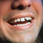 7 Top Causes Why Teeth Break