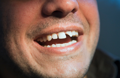 When you break a tooth, schedule an appointment with your dentist right away to avoid further damage.