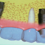 How much are dental implants in Mexico?