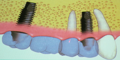 The key to pricing dental implants is understanding its 3 components: post, abutment and crown.