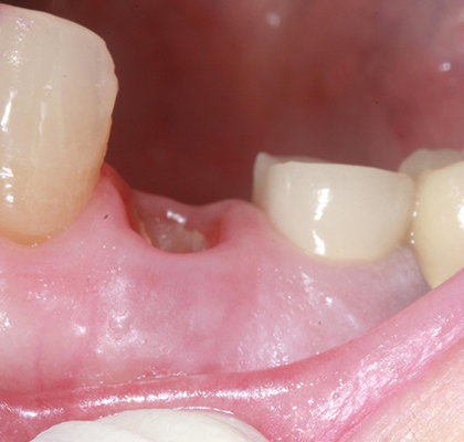How much is a surgical tooth extraction?