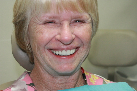 An actual dental tourism patient who just received a brand new smile from cosmetic dentistry in Mexico.