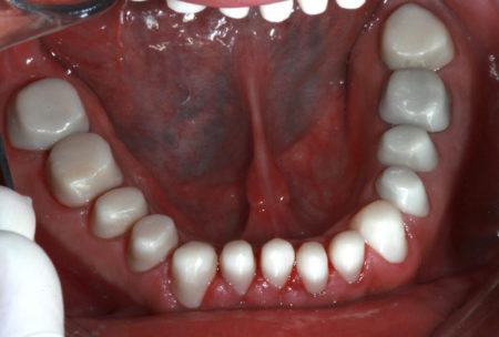 Full mouth cosmetic dentistry in Mexico