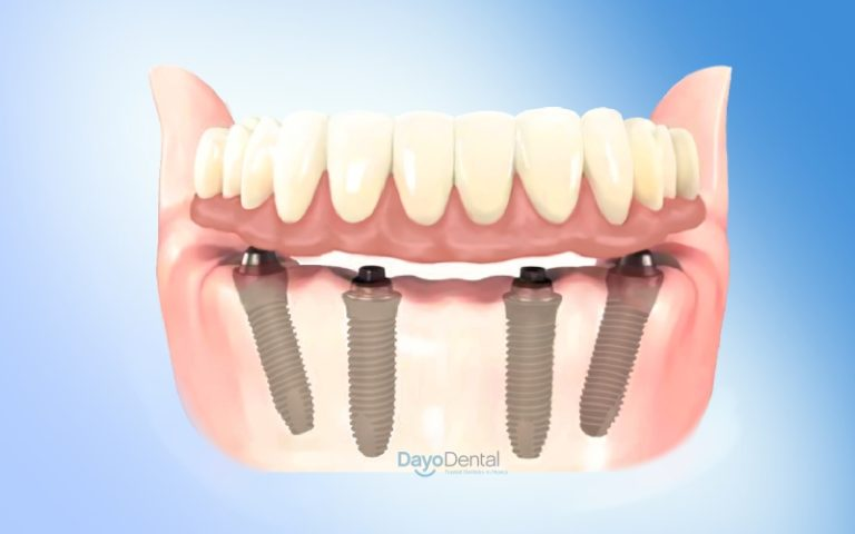 All on 4 dental implants Mexico Cost