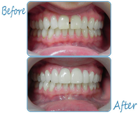 Cosmetic dentistry in Mexico using Lumineers