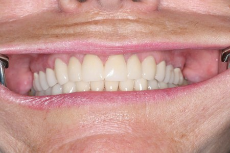 Sample full mouth cosmetic dentistry made in Mexico.