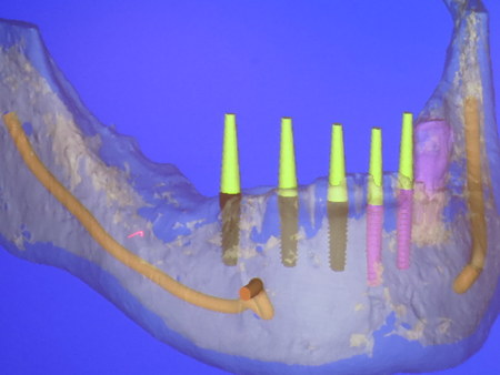 Cost of full mouth dental implants in mexico