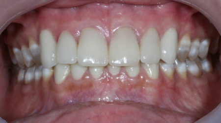 Cosmetic dentistry in Mexico 6 front teeth