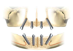 All on 4 Implants Mexico dental surgey