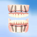6 Crucial Tips for Getting All on 4 Dental Implants in Mexico