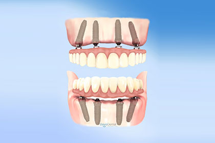 Before seeing a dentist in Mexico, know the difference between All on 4 dental implants and standard dental implants