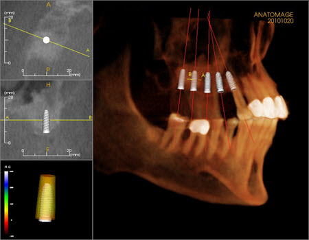 CT Scan of Dental Implants in Mexico Picture