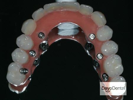 Fixed Bridge Dentures in Mexico Dentist Picture