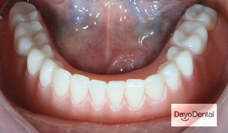 Overdentures in Mexico Picture, Implant Dentures